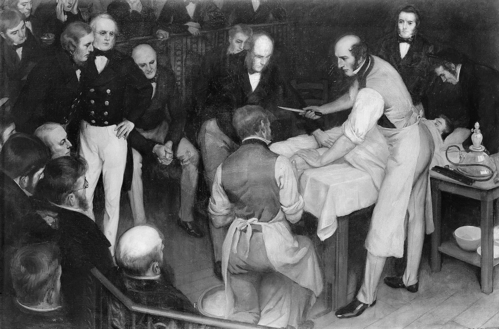 doctor Robert Liston operando anestesia