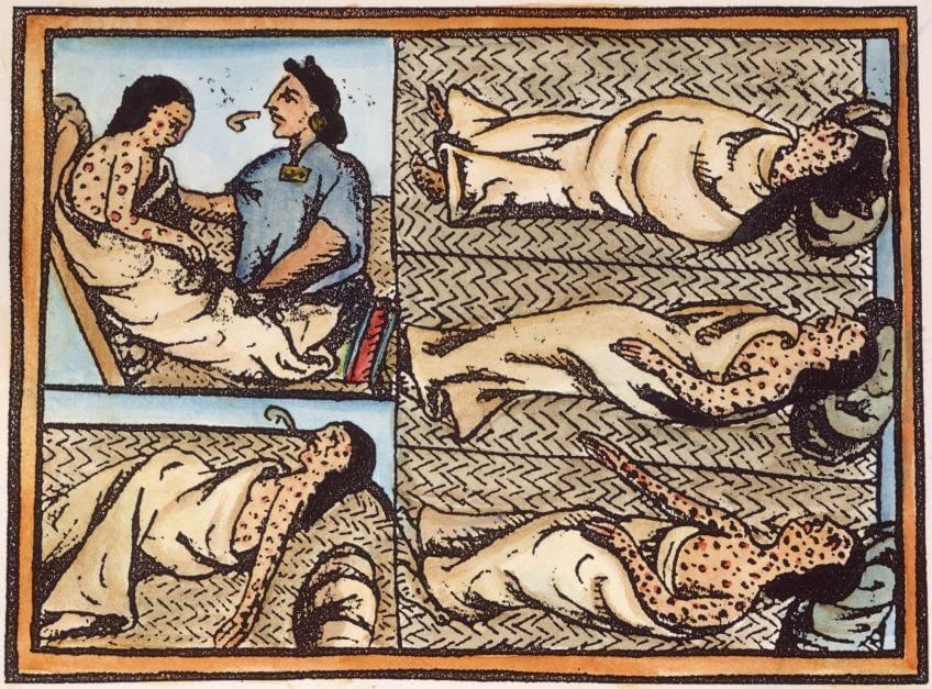 Enfermos de viruela durante el asedio de Tenochtitlán